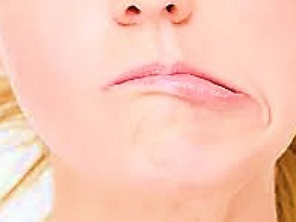 Faciojalis belova paraliza facijlanog nerva slika