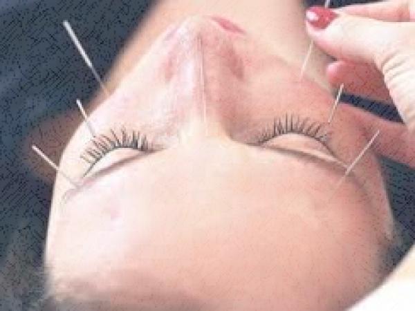 akopunktura